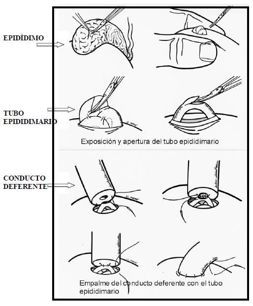 Epididimovasostomia