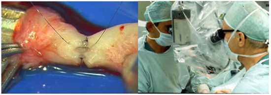 Revertir vasectomía (vasovasostomía)