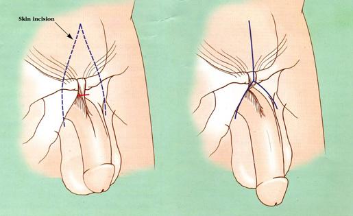 Alteraciones del tamaño del pene