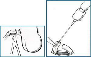 tecnica-vasectomia