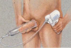 Artculos para agrandar el pene y bombas de ereccin